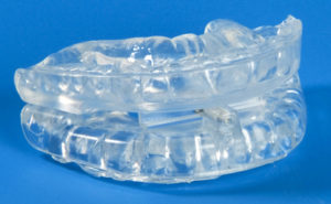 SomnoGuard Oral Appliance Therapy for SNORING & OSA